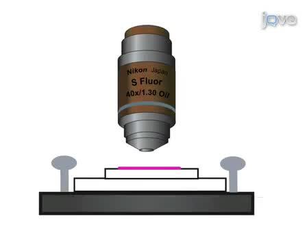 Imagerie calcique des neurones corticaux utilisant Fura-2 heures