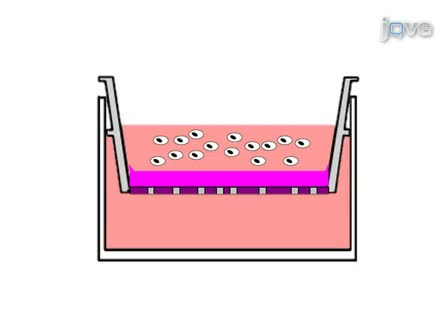 Ein<em> In-vitro-</em> FluoroBlok Tumor Invasion Assay