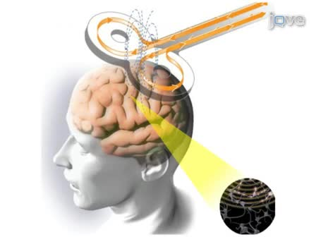 A Novel Approach for Documenting Phosphenes Induced by Transcranial Magnetic Stimulation