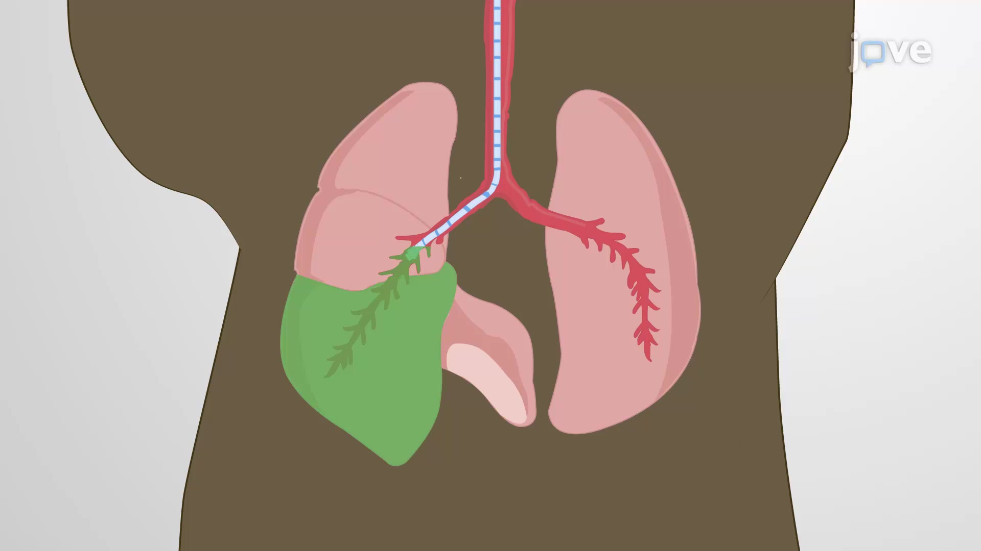 Intrabronchial Delivery: A Technique to Administer an Experimental Agent Selectively Into a Mouse Lung