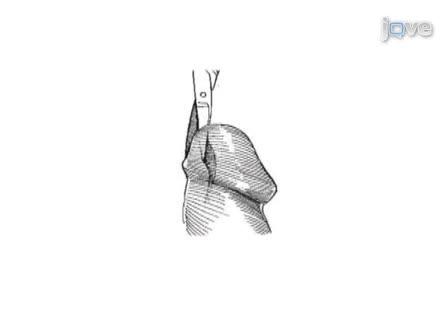ניהול כירורגי של היצרות Meatal עם Meatoplasty