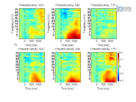 Combining Computer Game-Based Behavioural Experiments With High-Density EEG and Infrared Gaze Tracking