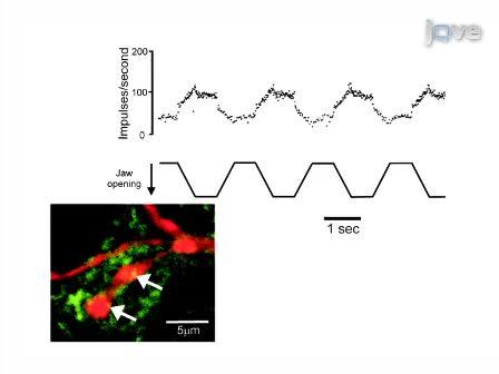 Caracterización fisiológicas, morfológicas y neuroquímicas de las neuronas modulada por el Movimiento