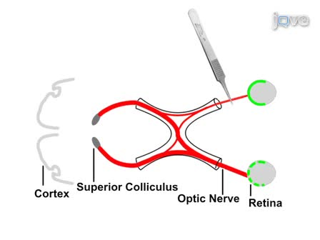 An Optic Nerve Crush Injury Murine Model to Study Retinal Ganglion Cell Survival