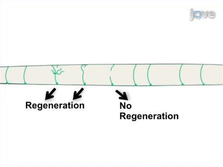 <em>In vivo</em> Laser Axotomy in <em>C. elegans</em>