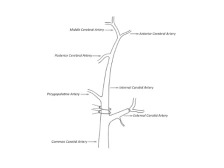 Intraluminal Middle Cerebral Artery Occlusion (MCAO) Model for Ischemic Stroke with Laser Doppler Flowmetry Guidance in Mice