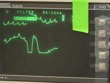 Normothermic कार्डिएक गिरफ्तार और कार्डियोपल्मोनरी resuscitation: Ischemia reperfusion चोट के एक माउस मॉडल