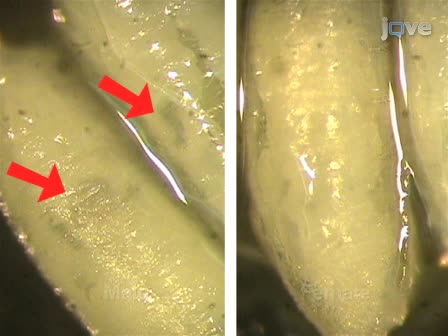 <em>Drosophila</em> Pupal Abdomen Immunohistochemistry