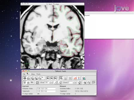 How to Measure Cortical Folding from MR Images: a Step-by-Step Tutorial to Compute Local Gyrification Index