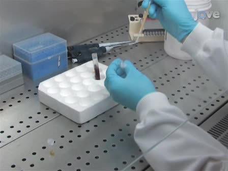 Detecção de aspergilose pulmonar invasiva em pacientes com doença hematológica maligna usando fluxo lateral Tecnologia