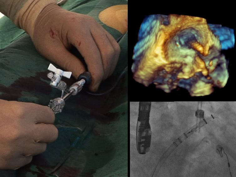 Katheterablation in Kombination mit linken Herzohr Closure für Vorhofflimmern