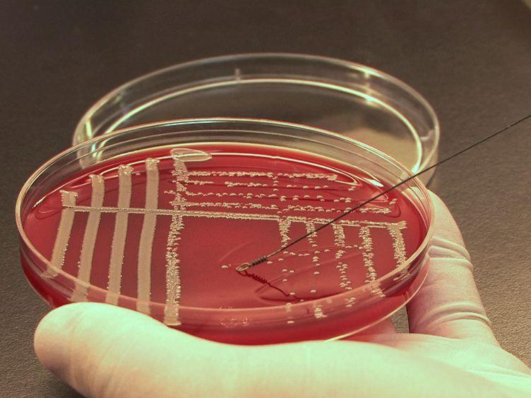 Experimental Endocarditis Model of Methicillin Resistant <em>Staphylococcus aureus</em> (MRSA) in Rat