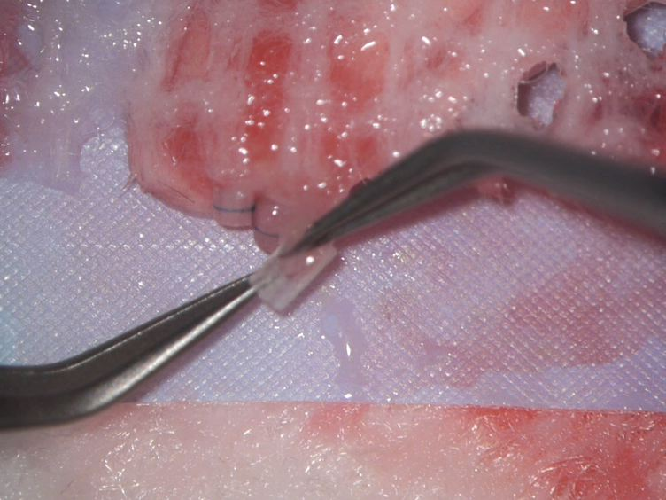 El desarrollo de bronquiolitis obliterante en un modelo murino de trasplante de pulmón ortotópico