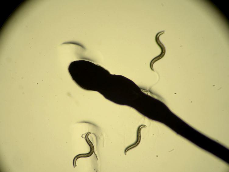 <em>In vivo</em> Neuronal Calcium Imaging in <em>C. elegans</em>