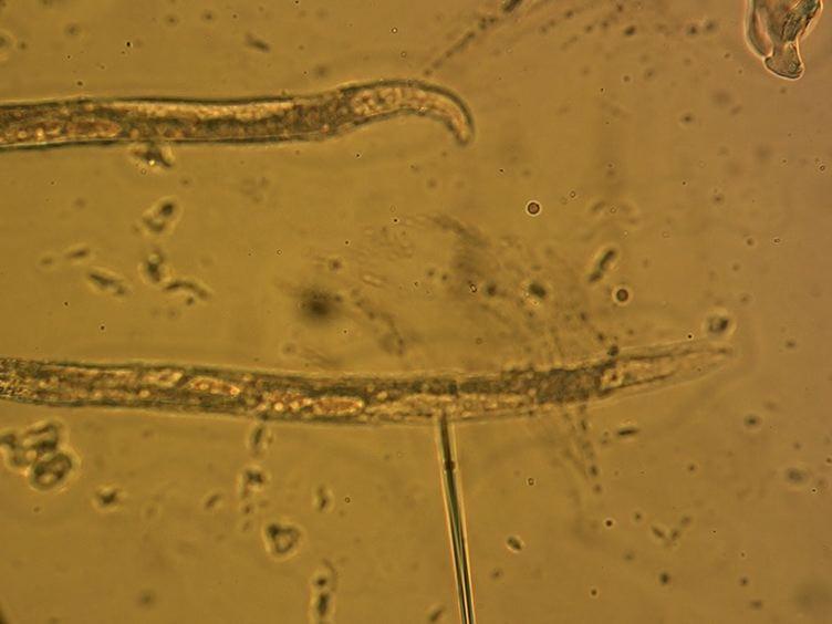 A <em>Caenorhabditis elegans</em> Model System for Amylopathy Study