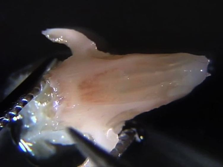 An Effective Manual Deboning Method To Prepare Intact Mouse Nasal Tissue With Preserved Anatomical Organization