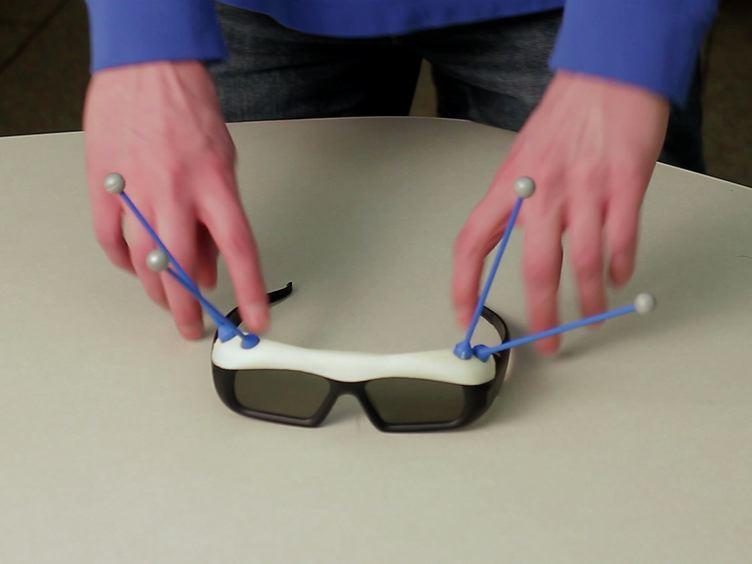 3D-Neuronavigation <em>In Vivo</em> Through a Patient's Brain During a Spontaneous Migraine Headache