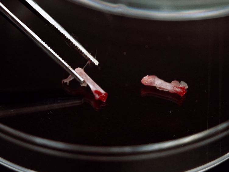A avaliação pré-clínica da tirosina quinase inibidores para o tratamento de leucemia aguda