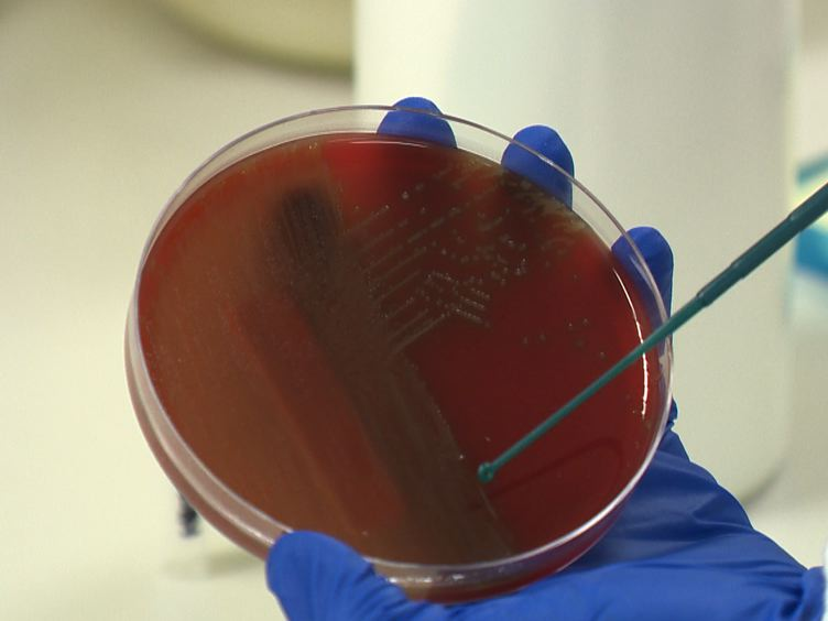 Capsular Serotyping of <em>Streptococcus pneumoniae</em> Using the Quellung Reaction