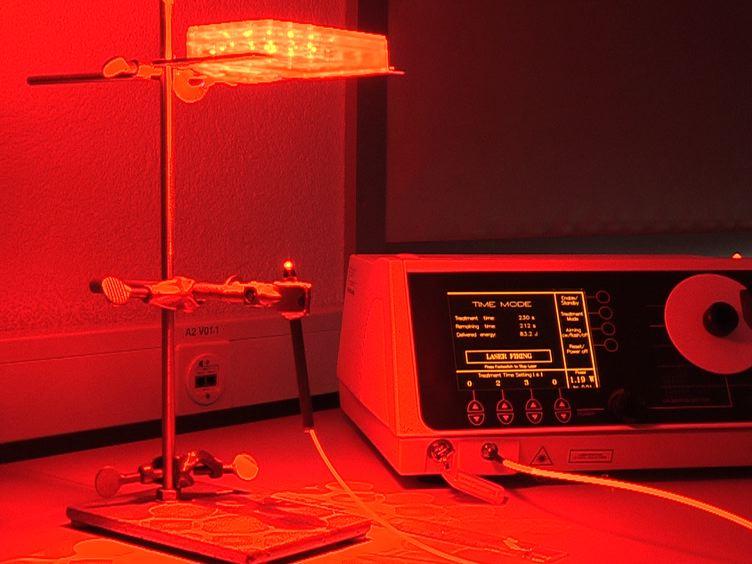 ऑस्टियो सार्कोमा कोशिकाओं में Photodynamic थेरेपी के साइटोटोक्सिक प्रभावकारिता<em&gt; इन विट्रो</em