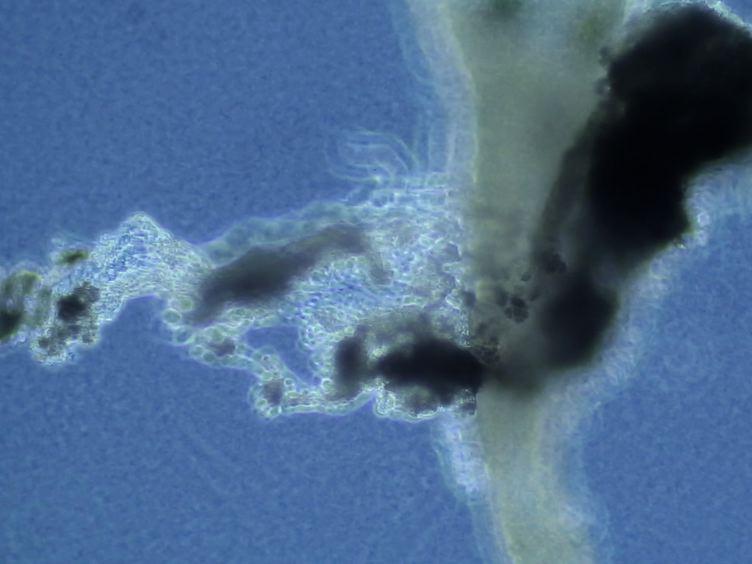 Isolation of Neonatal Extrahepatic Cholangiocytes