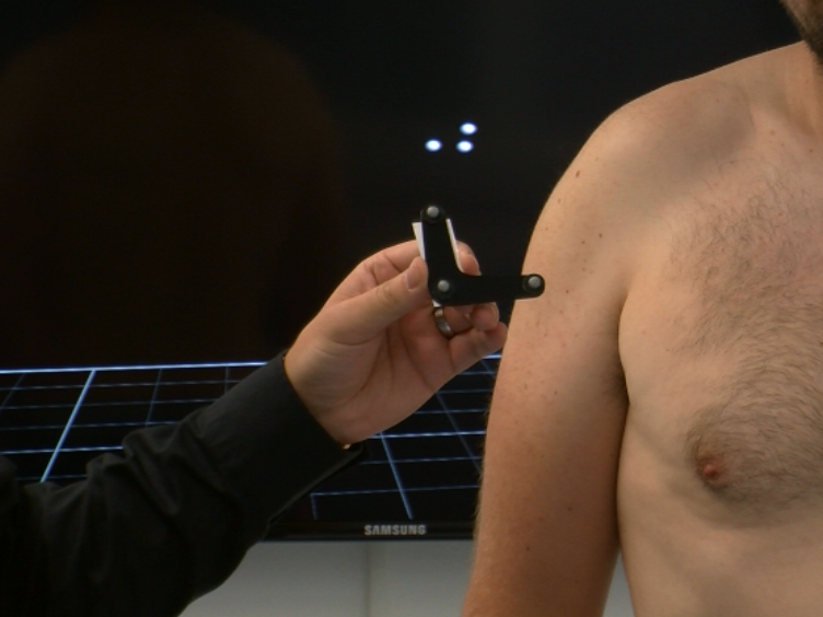 Measurement of Dynamic Scapular Kinematics Using an Acromion Marker Cluster to Minimize Skin Movement Artifact