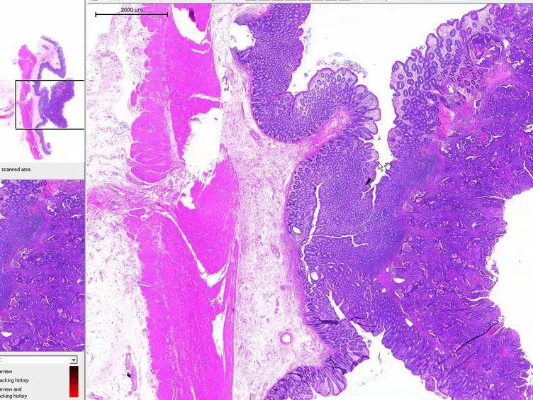 Un microarray de tejido de nueva generación (ngTMA) Protocolo de Estudios de biomarcadores