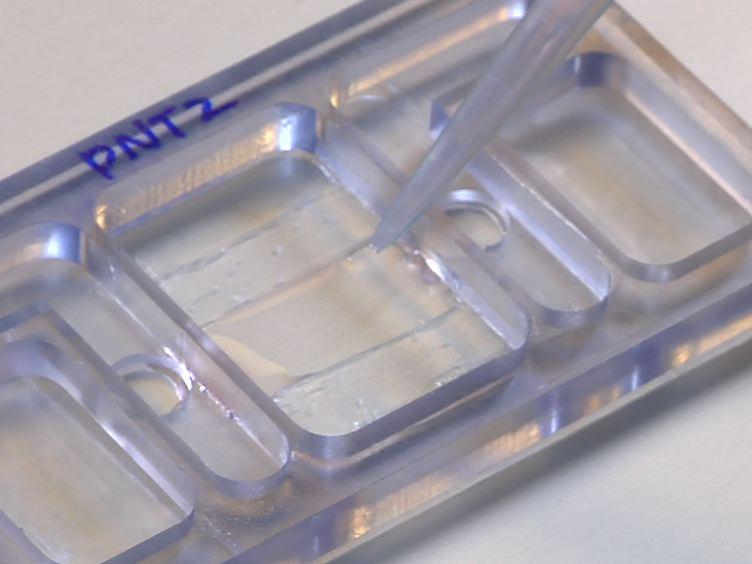 전립선 세포의 방향 마이그레이션 연구에 맞춤 설계 Galvanotaxis 챔버를 활용