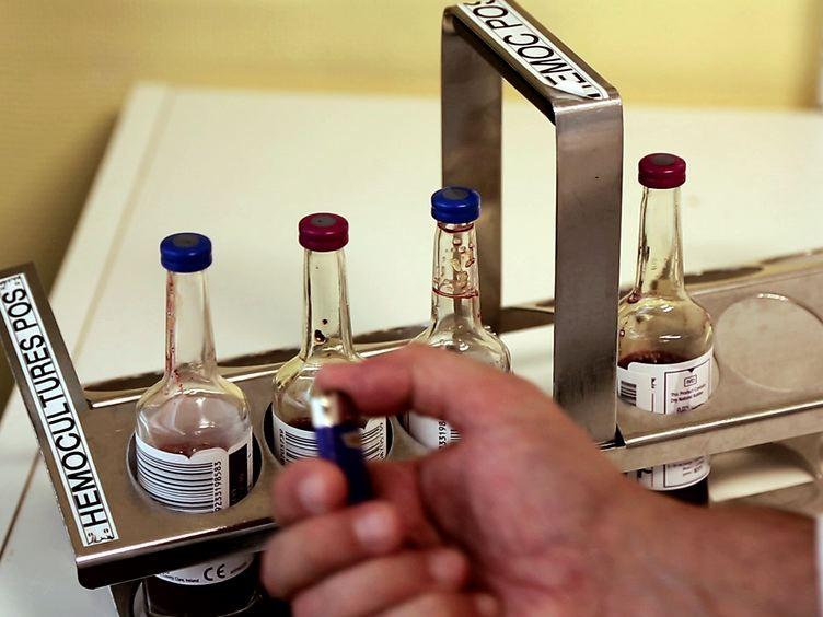빠른 세균의 식별 및 항생제 감수성 테스트를위한 혈액 문화 펠렛의 제조