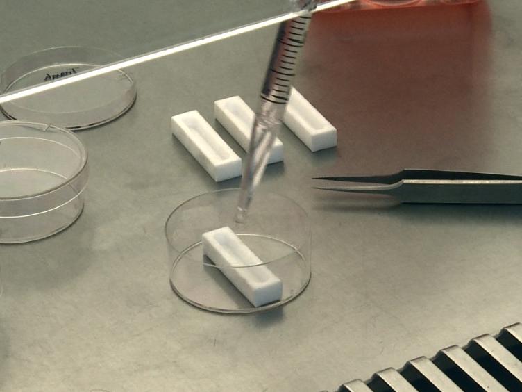 Optimizing Attachment of Human Mesenchymal Stem Cells on Poly(ε-caprolactone) Electrospun Yarns