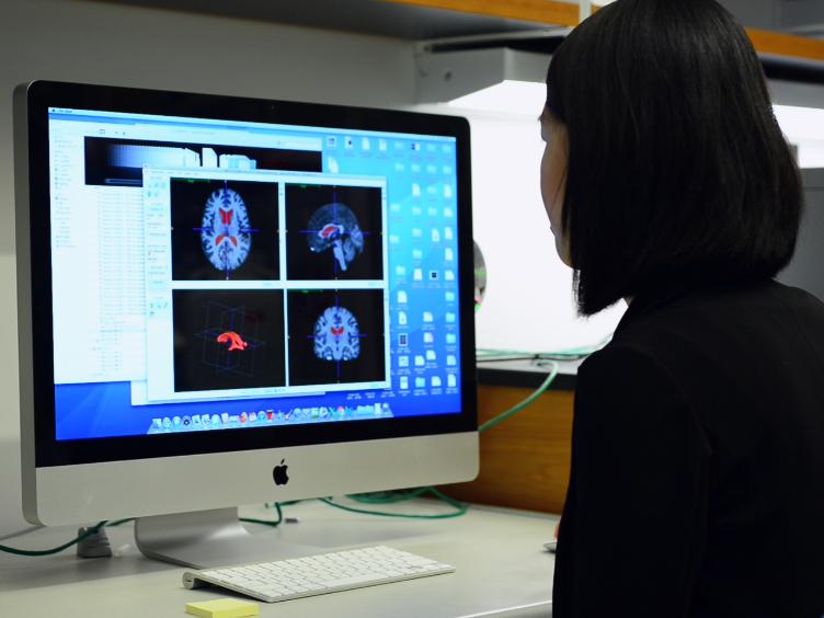 मनुष्य और माउस में Periventricular ऊतक के पार्श्व ventricles और histological विशेषता के 3 डी मॉडलिंग