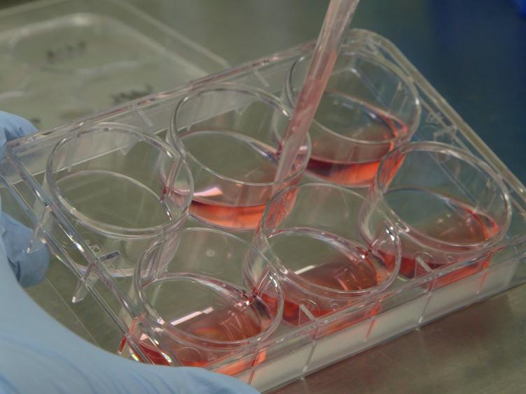 신경 질환의 연구에 대한 생성 및 사용 hiPSC 파생 NPC들에 가이드