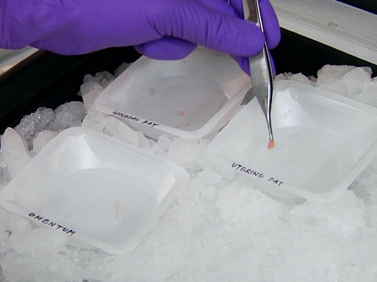 <em>In vivo לשעבר vivo</em> גישות לחקר סרטן השחלות גרורתי התיישבות של מבני ספוט החלב בהצפק שומני