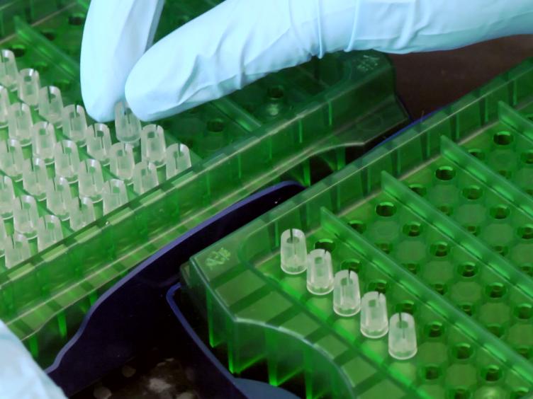 Iridium(III) Luminescent Probe for Detection of the Malarial Protein Biomarker Histidine Rich Protein-II
