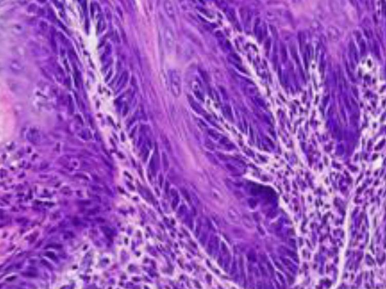 胃食管反流与小鼠手术模型