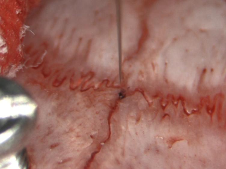 Microeletrodos guiada implantação de eletrodos no subtalâmica Núcleo de Ratos por longo prazo Estimulação Profunda do Cérebro