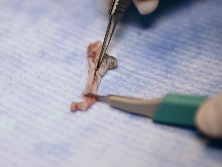 Murino fibroblastos dérmicos aislamiento por FACS