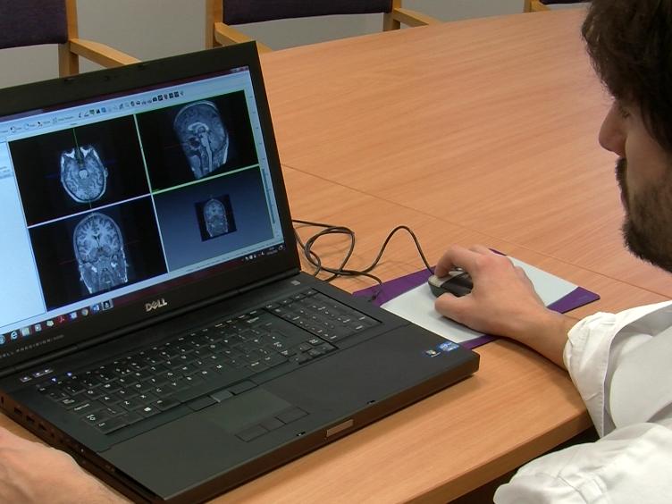 A Pipeline para 3D Multimodality Integração imagem e Planejamento assistida por computador em Cirurgia de Epilepsia