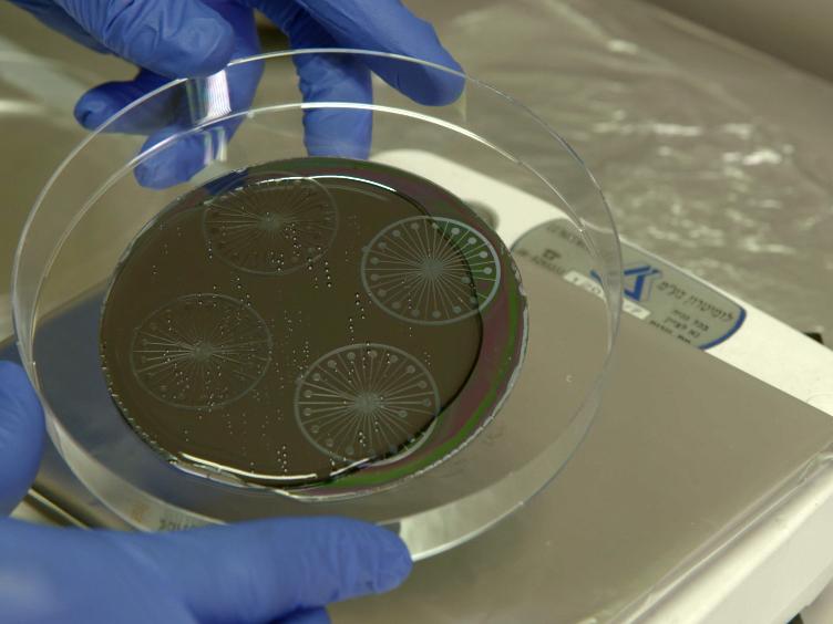 A Microfluidic Model of Biomimetically Breathing Pulmonary Acinar Airways