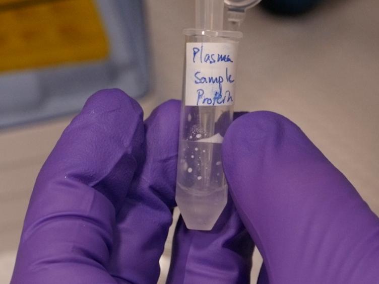 A Quantitative Glycomics and Proteomics Combined Purification Strategy
