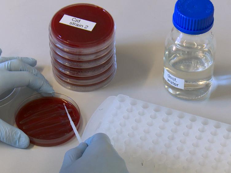 Subtyping of <em>Campylobacter jejuni</em> ssp. <em>doylei</em> Isolates Using Mass Spectrometry-based PhyloProteomics (MSPP)