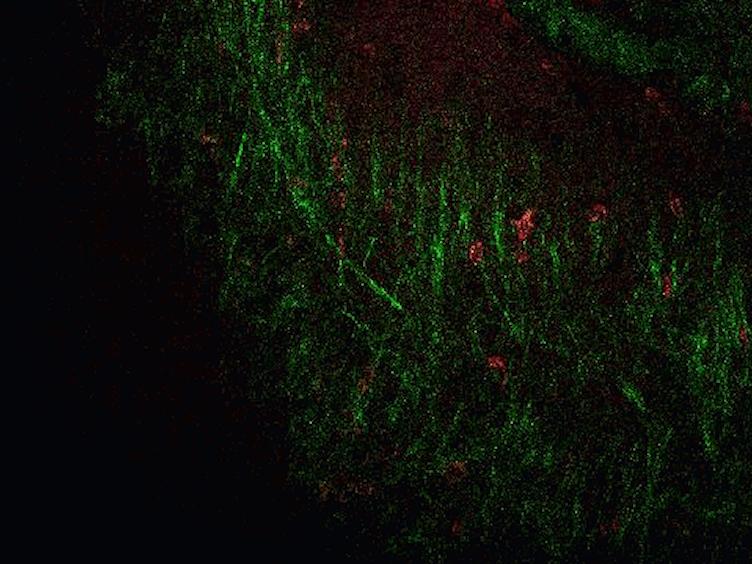 Visualizing Angiogenesis by Multiphoton Microscopy<em> In Vivo</em> in Genetically Modified 3D-PLGA/nHAp Scaffold for Calvarial Critical Bone Defect Repair