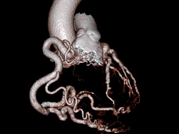 प्रत्यक्ष फेफड़े के धमनी से बाईं कोरोनरी धमनी की असंगत उत्पत्ति के साथ वयस्कों में महाधमनी में बाईं कोरोनरी धमनी की पुन: आरोपण (ALCAPA)