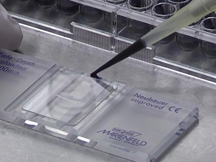 Intravital Microscopy of Monocyte Homing and Tumor-Related Angiogenesis in a Murine Model of Peripheral Arterial Disease