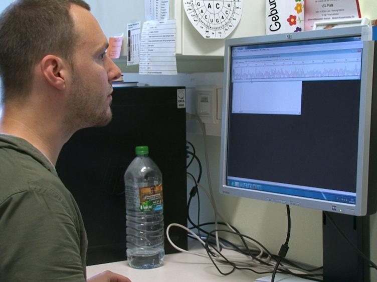<em>במבחנה</em> אנזים המדידה לנקודת מבחן תגובתיות המלווה תרופתי פאברי, מחלת הפומפה