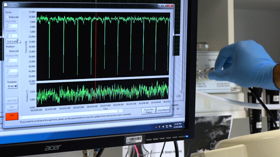 Non-invasive Assessment of Dorsiflexor Muscle Function in Mice