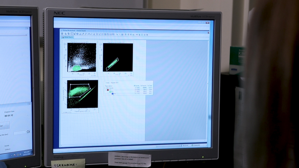 Quantifying Leukocyte Egress via Lymphatic Vessels from Murine Skin and Tumors