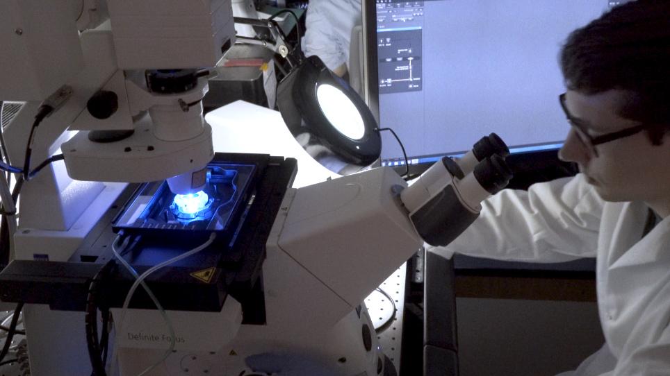 Astrositlerde Organeller ve Diğer Kargoların Hücre İçi Taşınmasının Görselleştirilmesi ve Analizi