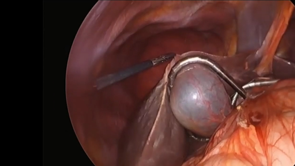 Technical Detail for Robot Assisted Pancreaticoduodenectomy
