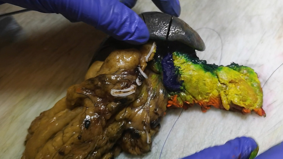 DIPLOMA Approach for Standardized Pathology Assessment of Distal Pancreatectomy Specimens